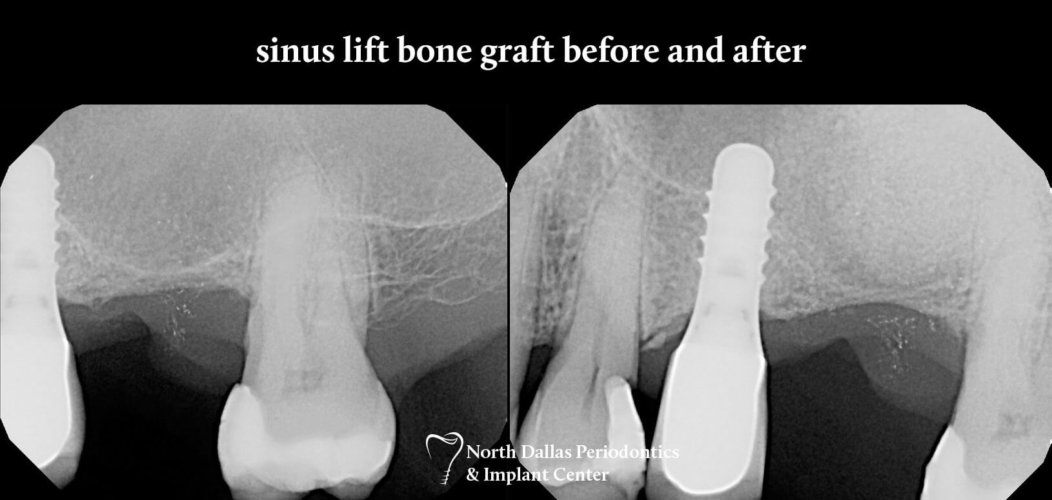 Marjan Adami DDS, Periodontist patient photos sinus lift bone graft before and after