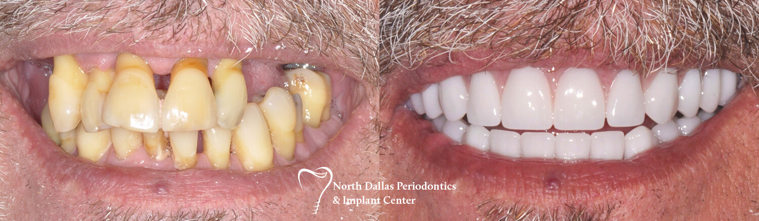 Marjan Adami DDS, Periodontist patient photos before and after